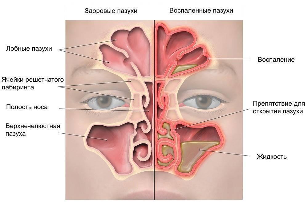 Чем отличается ринит от синусита
