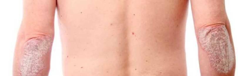 генитальный псориаз