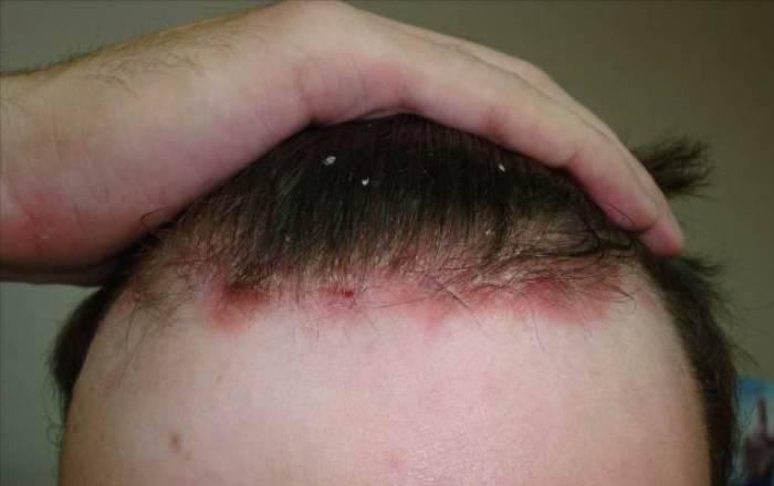 дегтярное мыло при псориазе головы