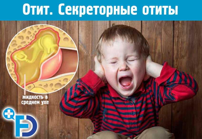 У ребенка болит ухо температура что делать. боль в ухе, температура: чем заболел мой ребенок? меры, которые можно предпринять, чтобы помочь больному чаду
