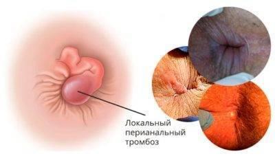 Симптомы и лечение тромбоза наружного геморроидального узла