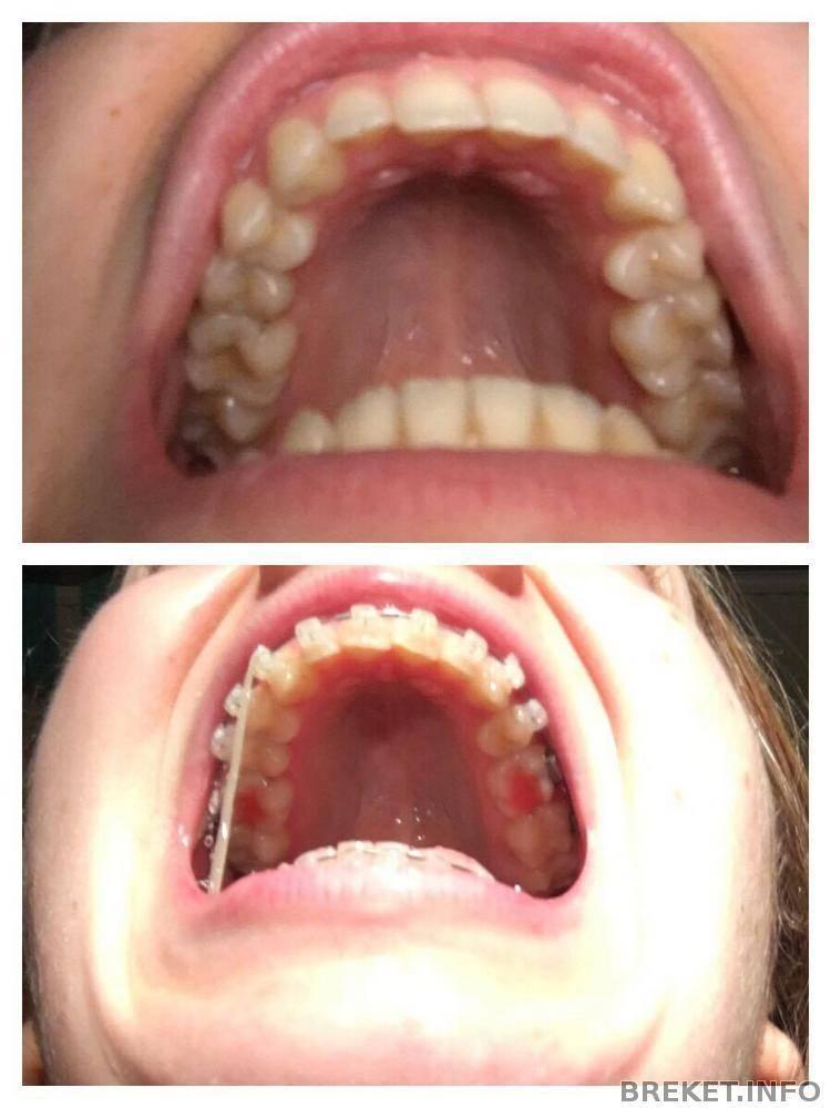 Опрос! стали бы вы удалять нормальные зубы для брекетов? - запись пользователя аня (mamakoala) в сообществе все о красоте в категории уход за зубами - babyblog.ru