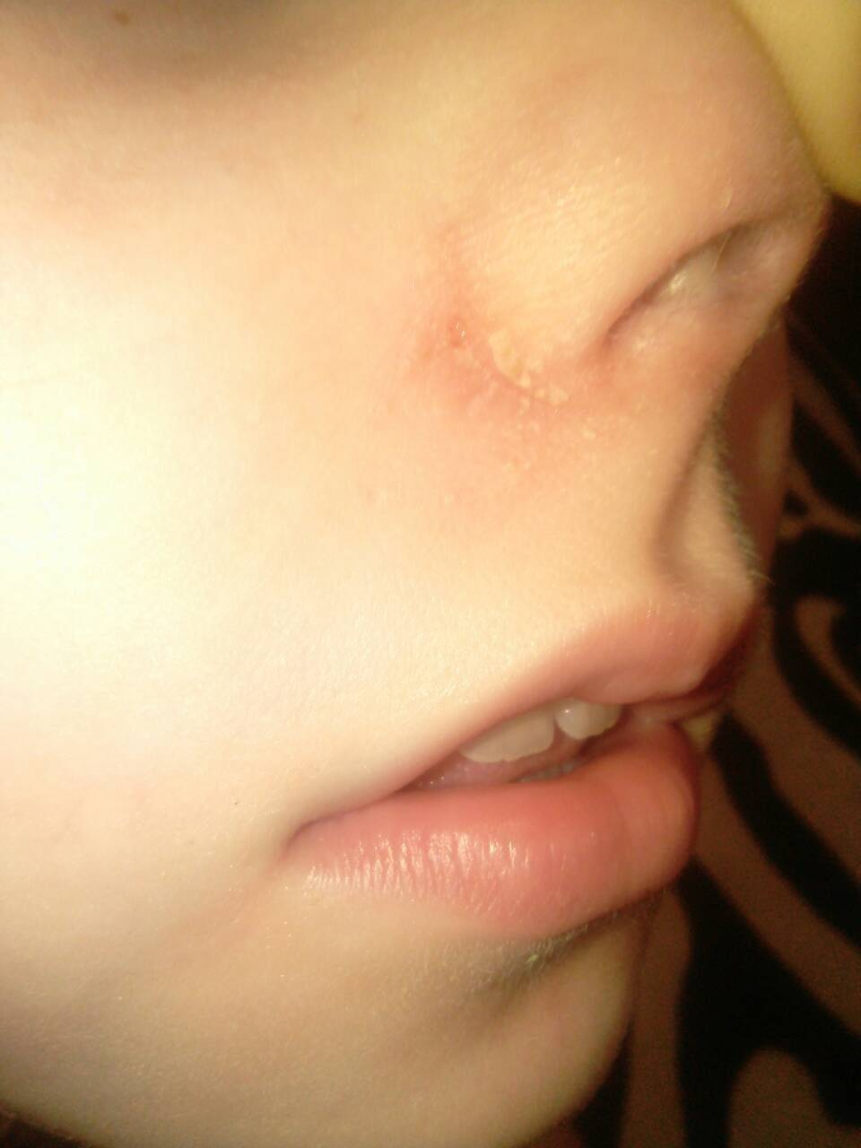 Герпес в носу: лечение и профилактика заболевания