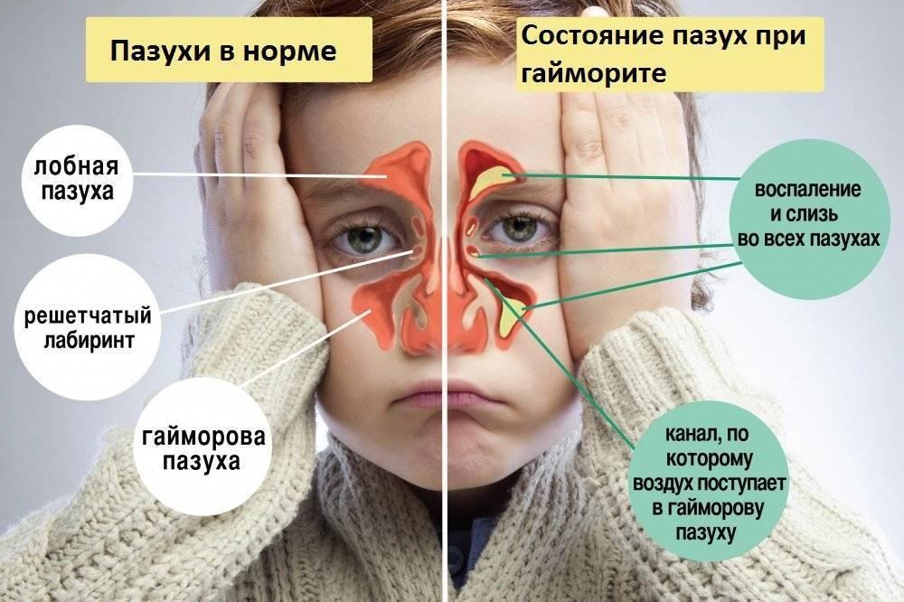 Что такое гипоплазия лобной пазухи