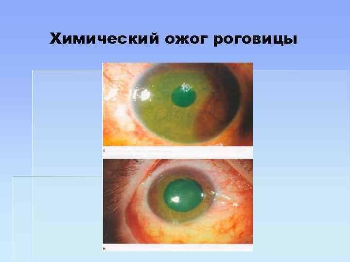 Что делать при ожоге роговицы глаза: симптомы и лечение