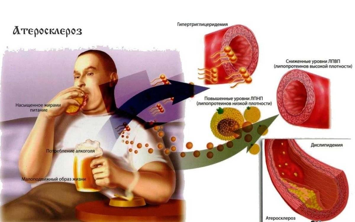 Холестерин лпвп (hdl-c) – что это такое и какова его норма в крови?