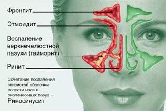 Этмоидальный синусит (этмоидит)