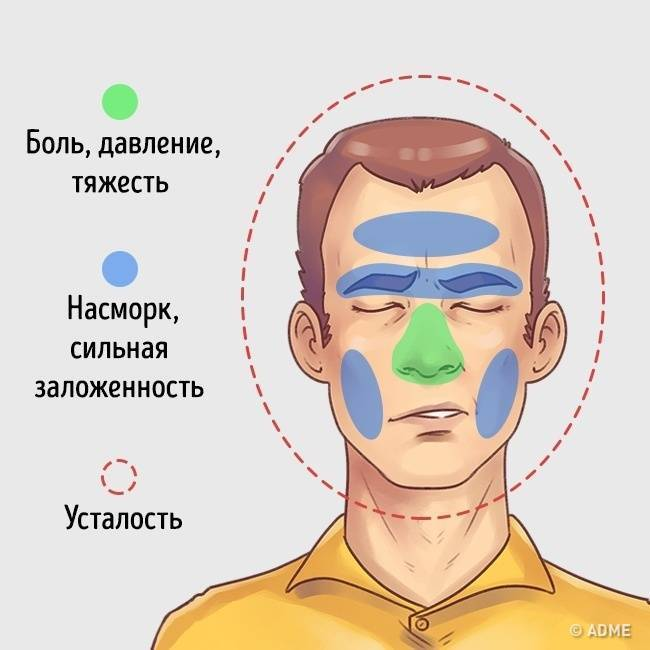 Головная боль при насморке: причины, лечение и профилактика