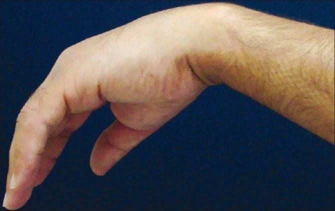 Как не перепутать с туннельным синдромом? неврит срединного нерва руки и его особенности