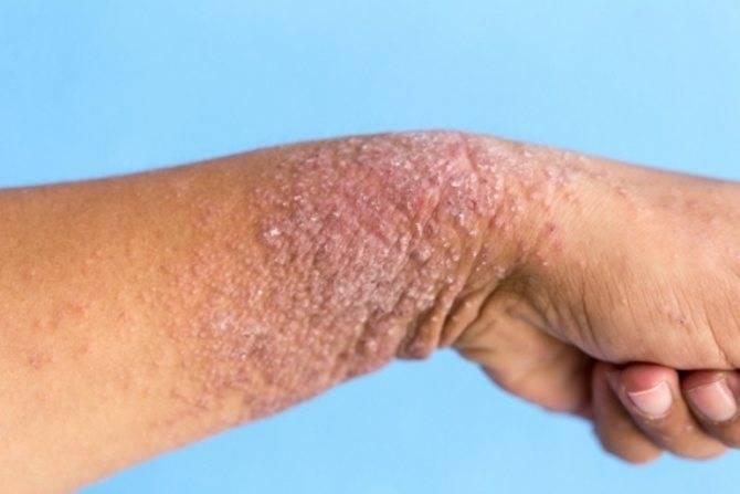 атопический дерматит диффузный