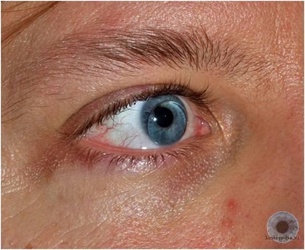 Болят глаза после линз: почему возникает дискомфорт от снятия и при ношении, что делать