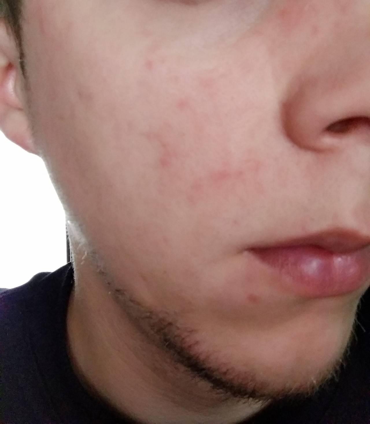 Герпес на лице – виды высыпаний и самые эффективные способы лечения
