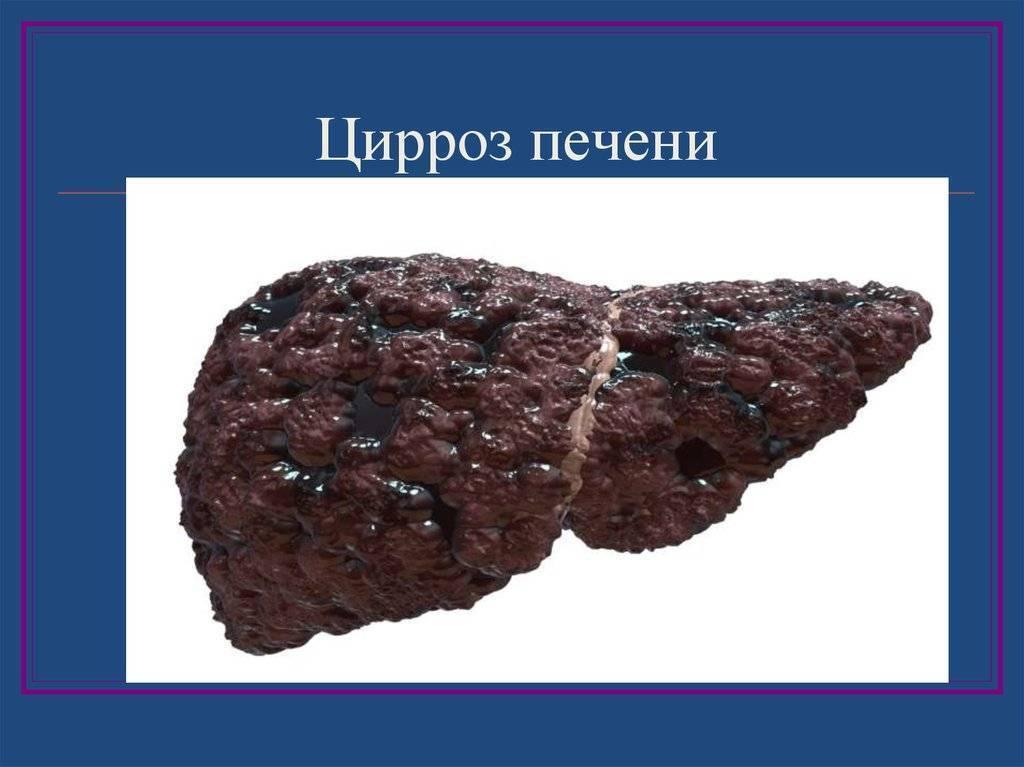 Компенсированный цирроз печени