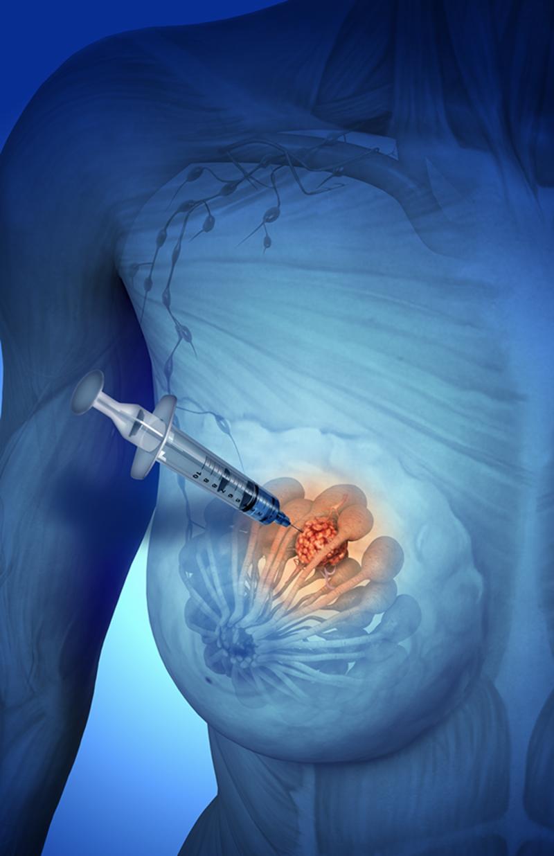 Пункция молочной железы - как берут. последствия и результаты пункции молочной железы