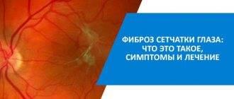 Фиброз стекловидного тела глаза что это такое