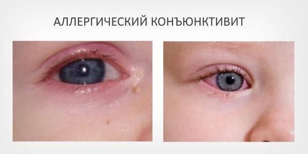 Гноятся глаза после бани