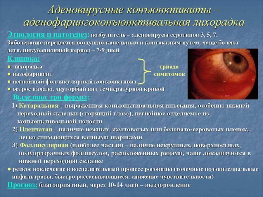 Аденовирусный конъюнктивит