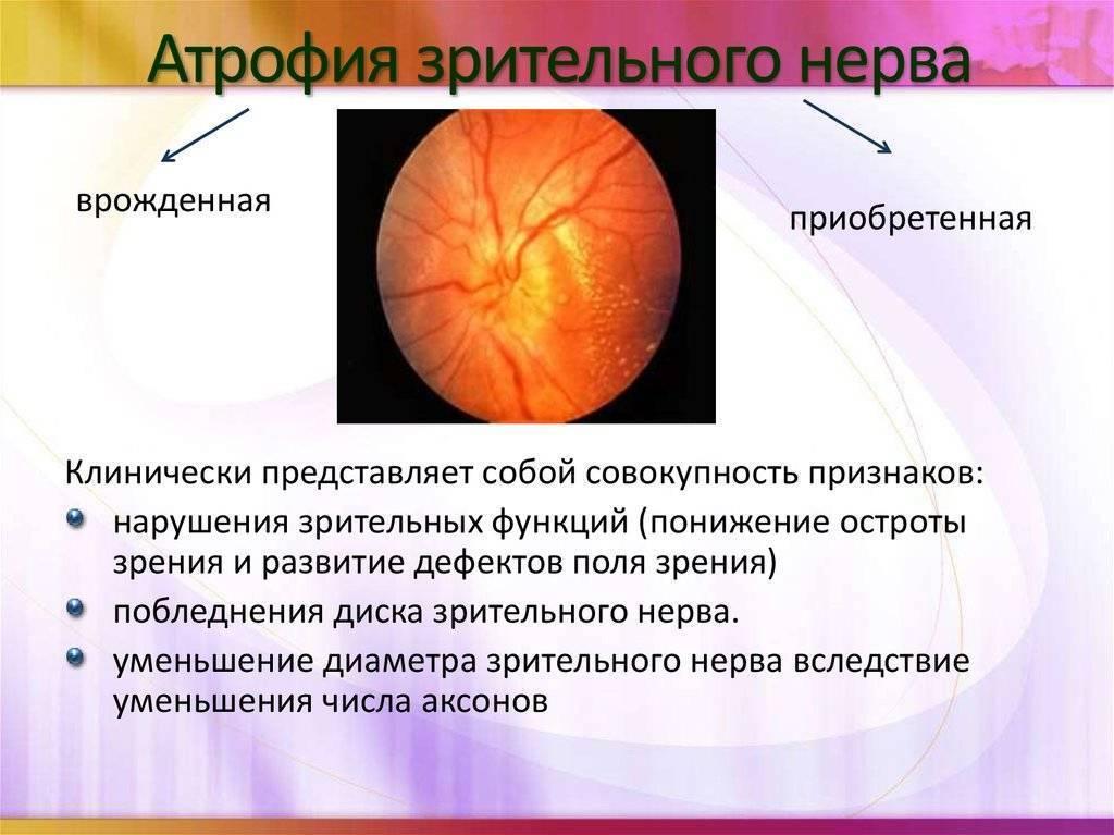 Атрофия зрительного нерва - симптомы, лечение