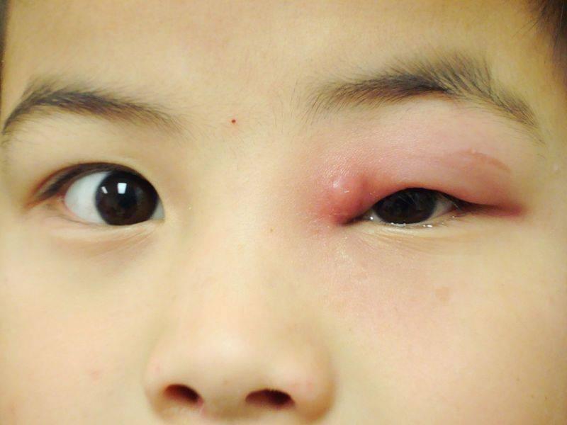 Эффективные капли от воспаления глаз