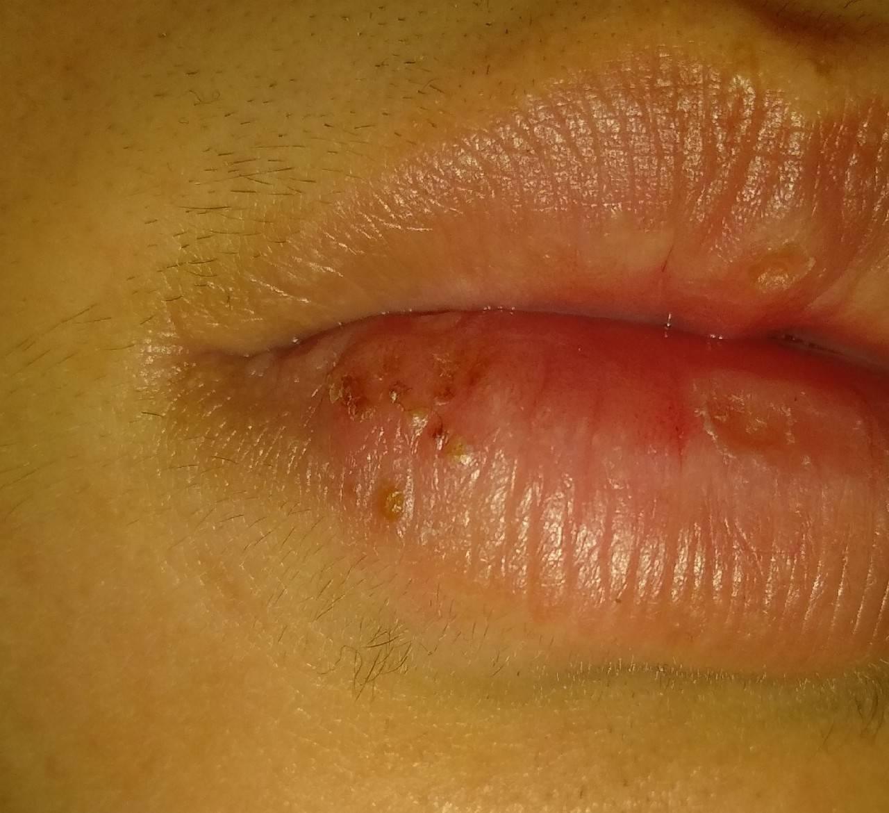 Герпес внутри губы как лечить