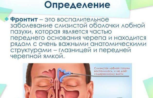 Лечение синусита народными средствами: самые эффективные