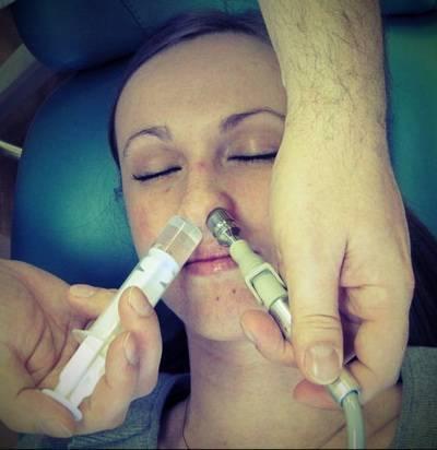 Лечение гайморита кукушкой: о методе проетца, как делать, отзывы