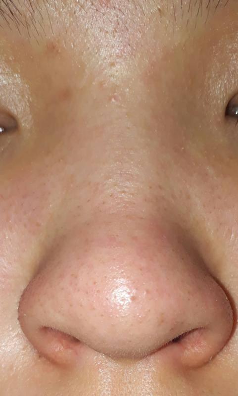 Болят крылья носа: вопросы по отоларингологии