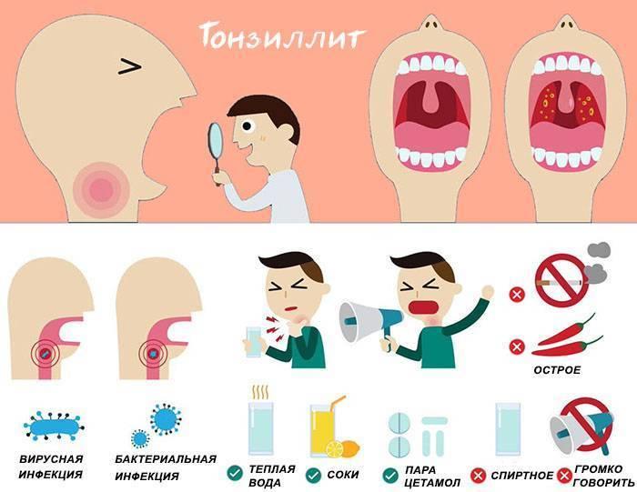 тонзиллит профилактика и лечение