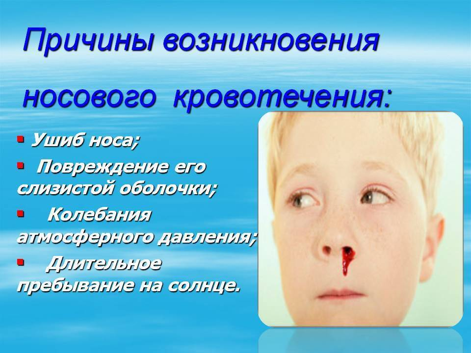 кровь из носа у ребенка комаровский