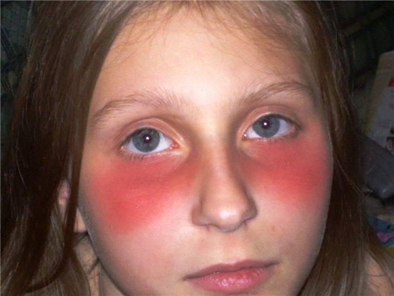 красная кожа вокруг глаз