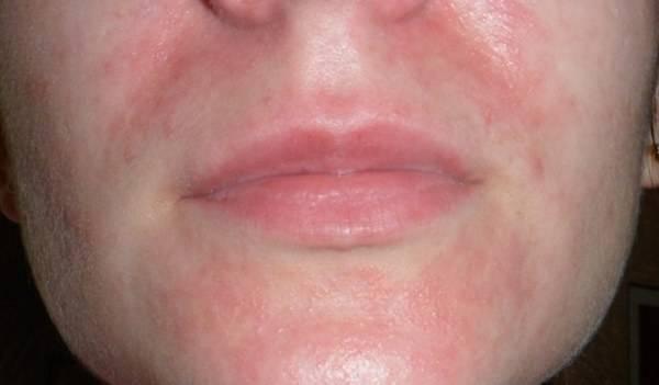 мазь при периоральном дерматите