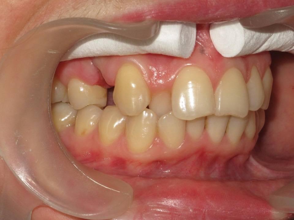 Как выровнять зубы взрослому человеку?