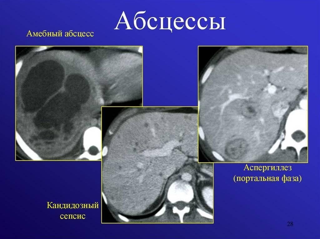 Амебный абсцесс печени - описание болезни