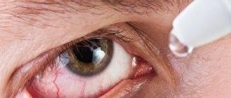 сильный насморк и слезятся глаза