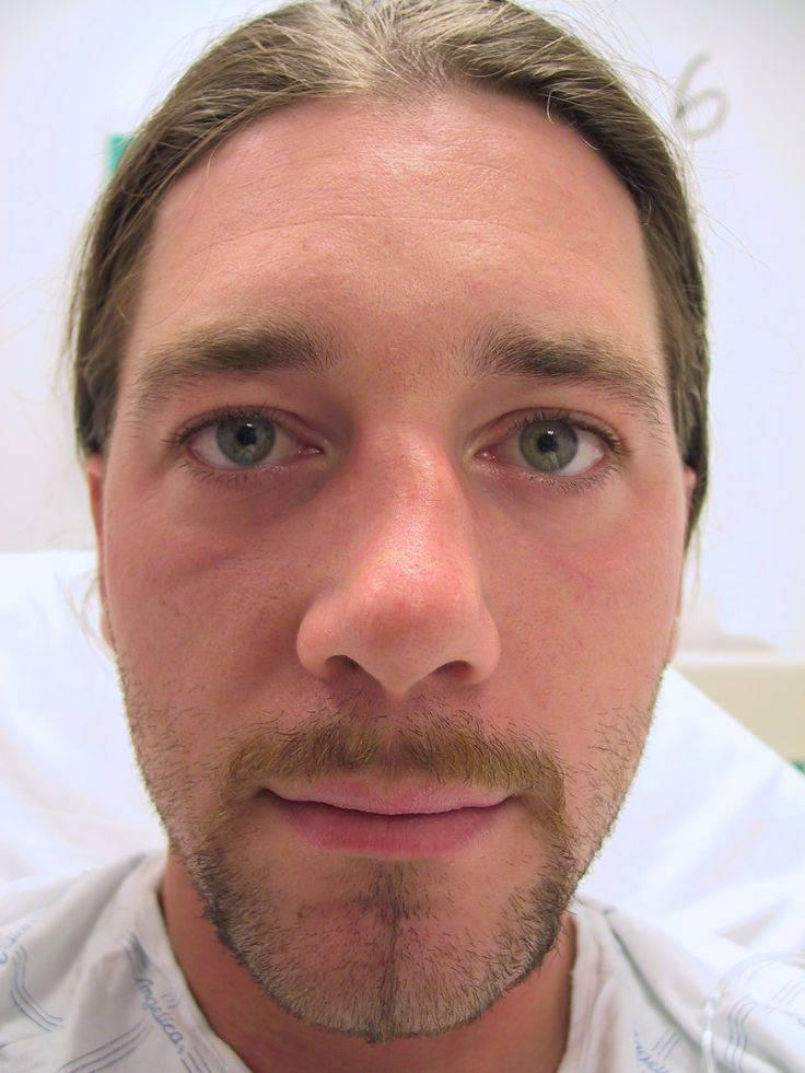 сломана перегородка носа