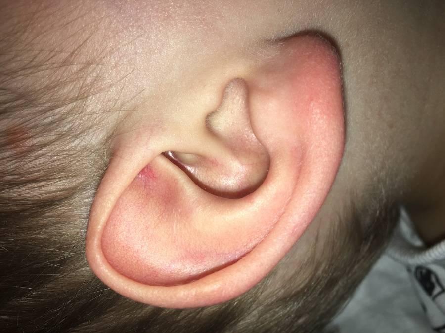 болячки в ушах