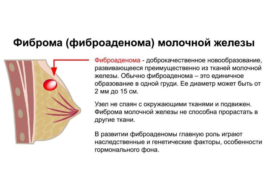 Отзывы о народных средствах лечения кист молочной железы
