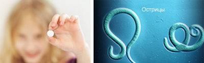 Острицы при беременности: влияние паразитов на плод