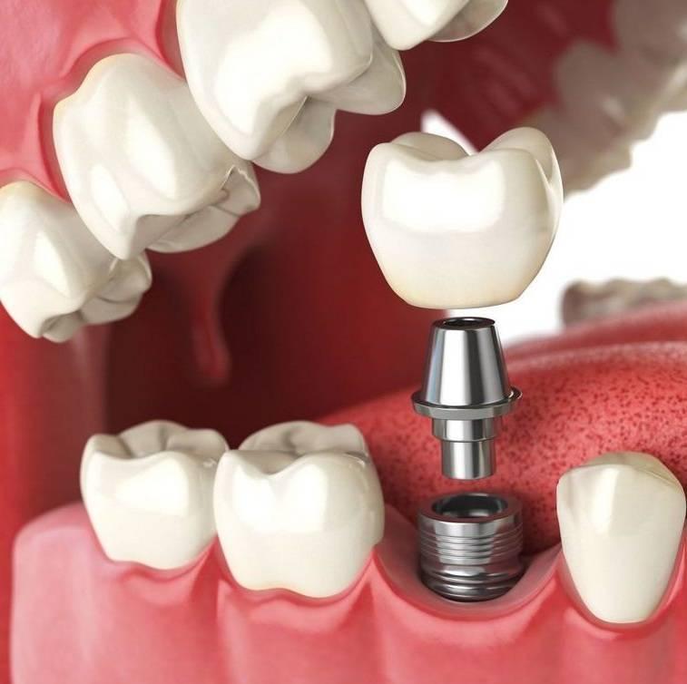 На какой зуб можно поставить коронку