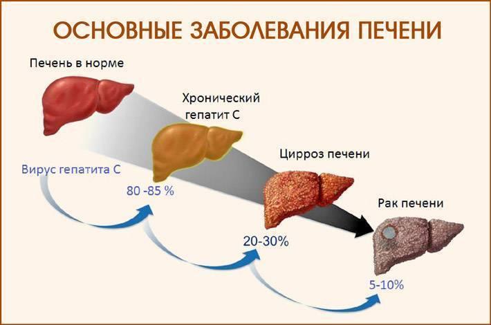 лечение хронического вирусного гепатита в