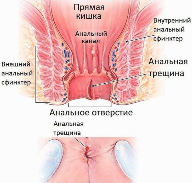 Перианальный кандидозный дерматит у ребенка
