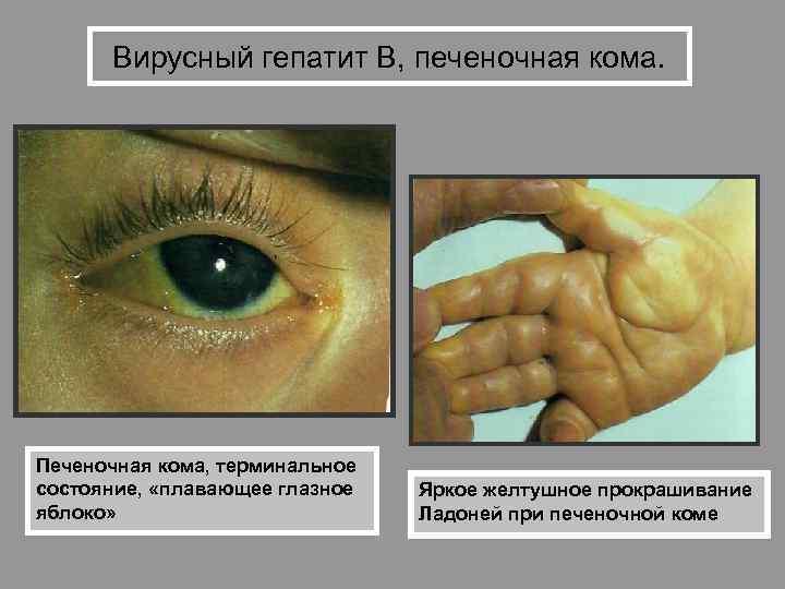Инфекционная желтуха: причины, симптомы, диагностика и лечение