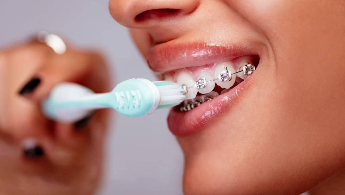 как ухаживать за зубами с брекетами