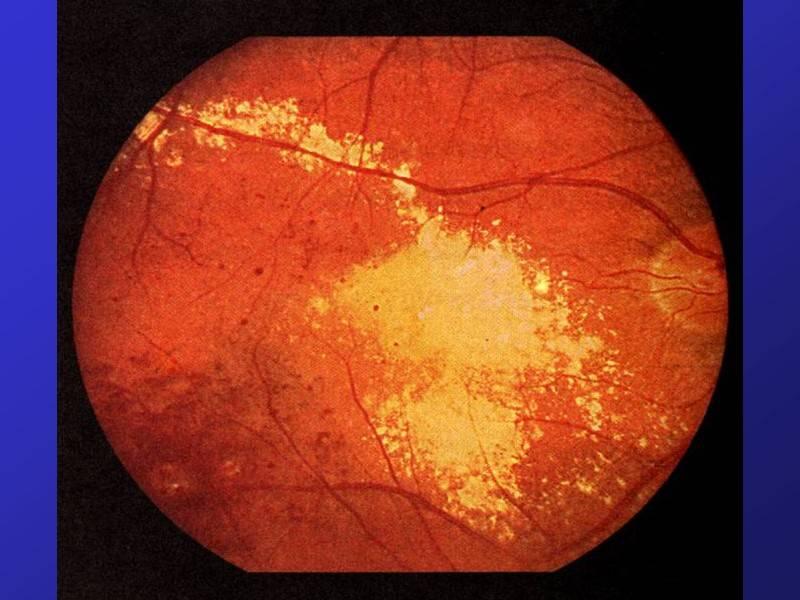 Периферическая дистрофия сетчатки: классификация, признаки, методы диагностики и лечения