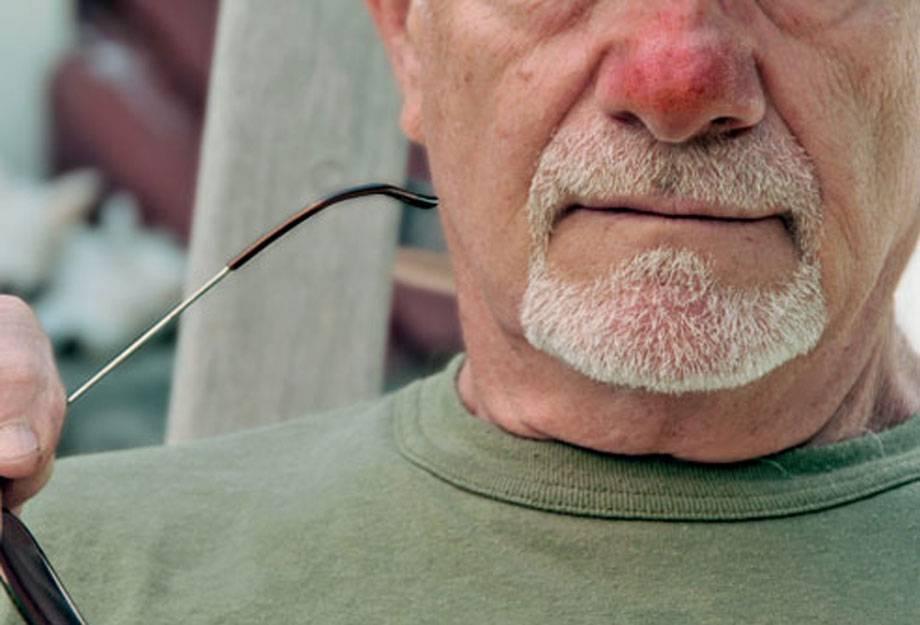 Что делать если кончик носа красный и болит при прикосновении?