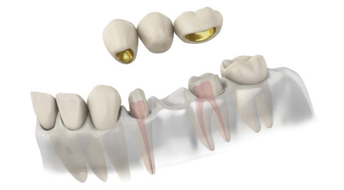 Мостовидные зубные протезы в москве: доступные цены, фото, отзывы.