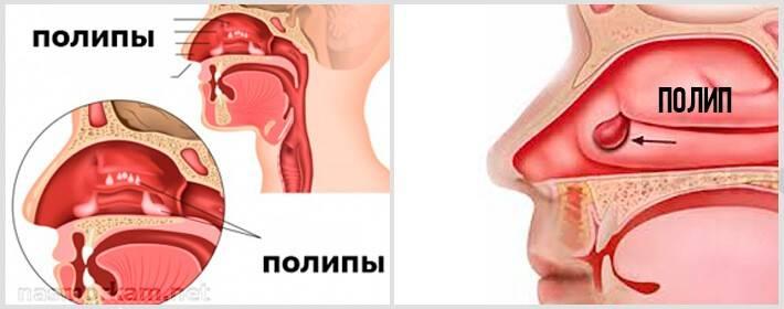 как убрать полипы в носу без операции