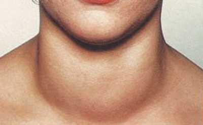 Если узел на щитовидной железе