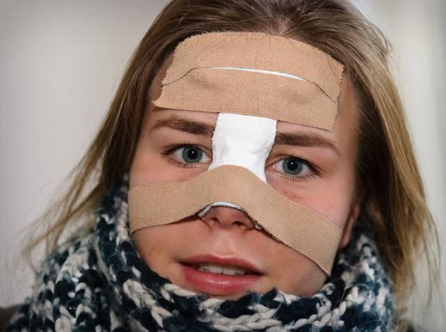 открытый перелом носа