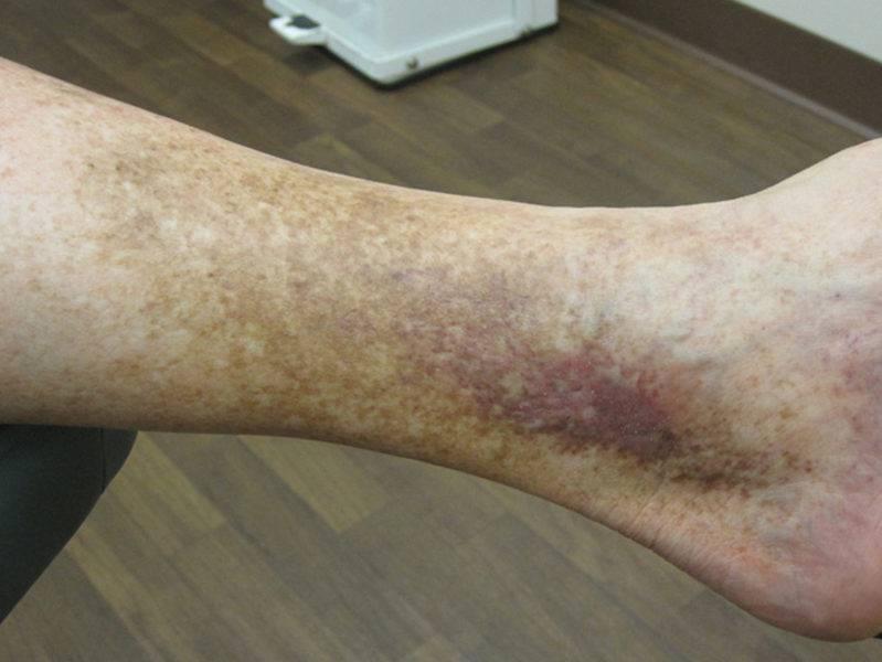 дерматит на ногах лечение мази